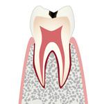 C1・エナメル質の虫歯