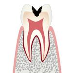 C2・象牙質の虫歯