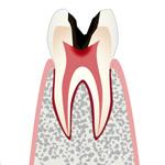 C3・神経まで侵された虫歯