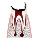 C4・歯冠が崩壊した虫歯