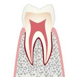 Co・初期の虫歯