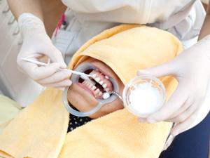 歯質を強くするFAPホワイトニング