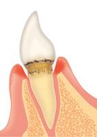 軽度歯周病の状態